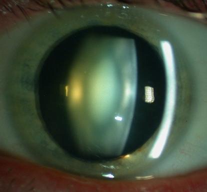 cataracte-nucleaire.1185978310.jpg