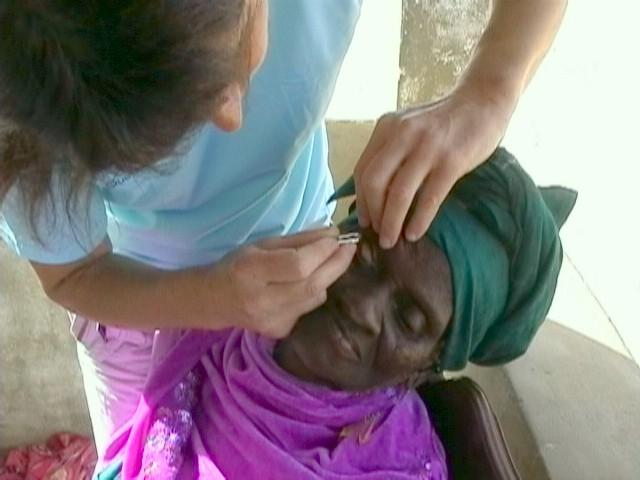 trachome.1212127474.JPG